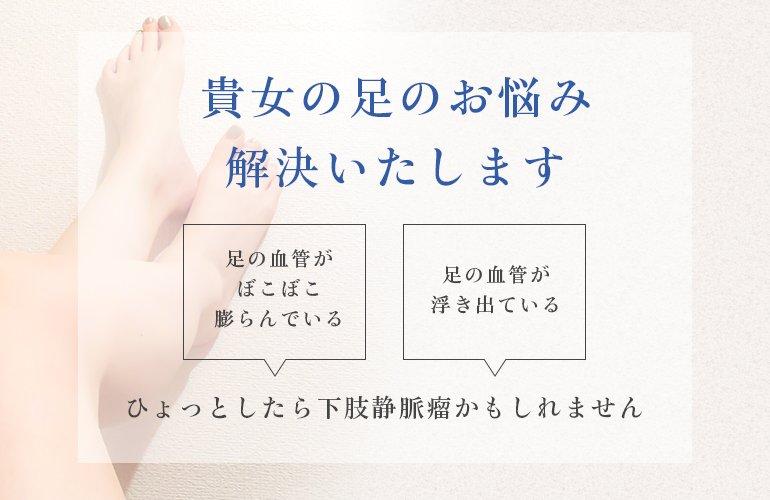 貴女の足のお悩み解決いたします 足の血管がぼこぼこ膨らんでいる 足の血管が浮き出ている ひょっとしたら下肢静脈瘤かもしれません