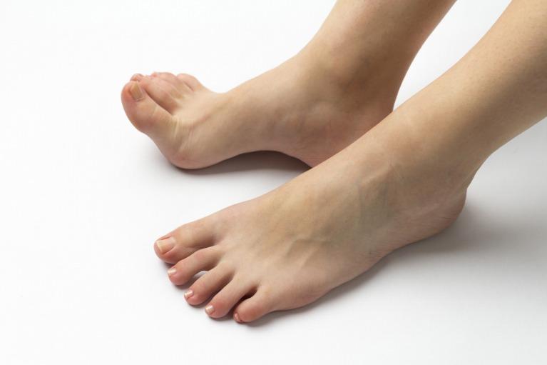 下肢静脈瘤の症状の主な特徴