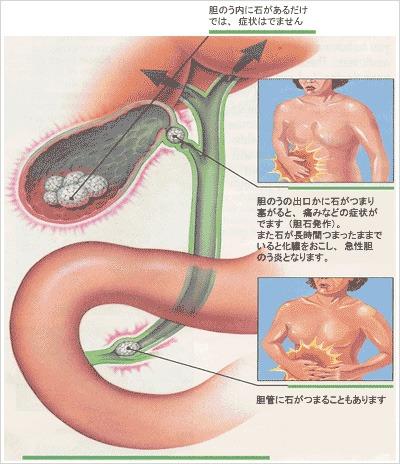 胆石の症状