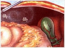 炭酸ガスを注入して腹腔を膨らませ、手術をするためのスペースを作り出します。