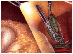 モニターで腹腔内を観察しながら、胆のうの周囲を剥離していきます。