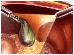 腹腔内で切除した胆石入りの胆のうを10mm創から取り出します。