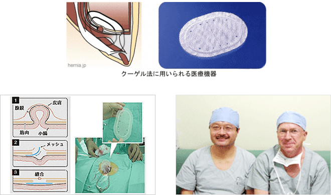 鼠径ヘルニアの手術について