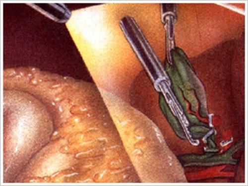 腹腔鏡による胆石手術の状態