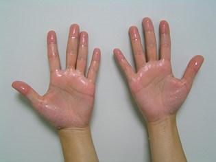 手掌多汗症